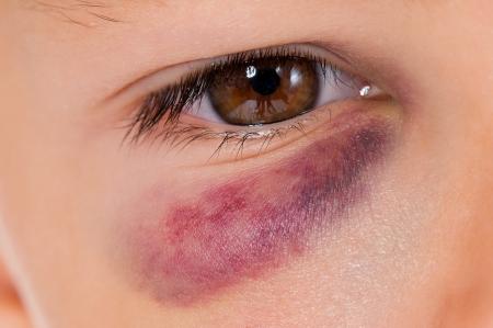 oči: Close-up chlapce oka s reálným modřina