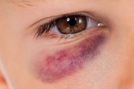 maltrato infantil: Primer plano de los ojos del muchacho con la contusi�n reales