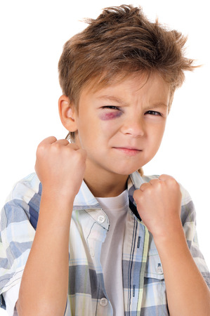 swollen: Portrait of boy with real eye bruise, isolated on white background