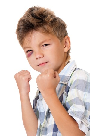 health care fight: Boy with bruise
