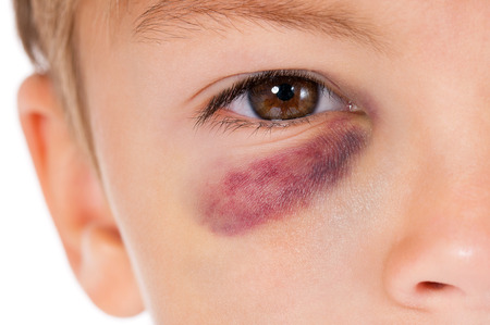bruise: Close-up portrait of boy with bruise, isolated on white background