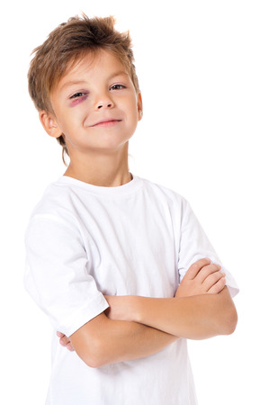 bruise: Portrait of boy with bruise, isolated on white background Stock Photo