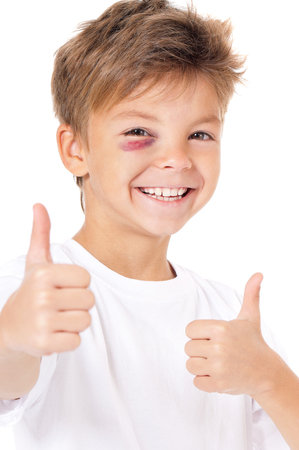 injure: Portrait of happy boy with bruise, showing thumbs up gesture, isolated on white background