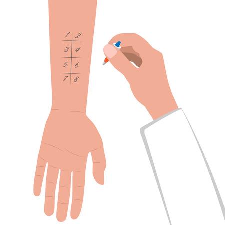 Allergietest. Hand met pipet. Medisch onderzoek plat ontwerp. Patiënt met een allergische reactie. Vector illustratie