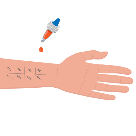Allergy test Hand with pipette