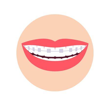 Orthodontic braces on teeth. Smile isolated on a white background. Vector illustration 向量圖像