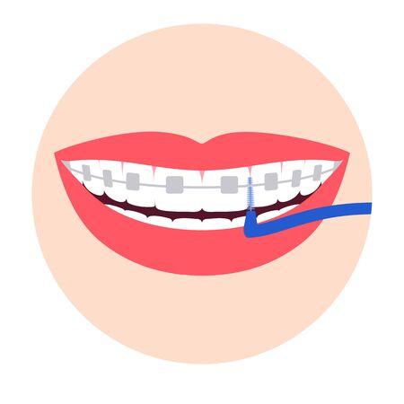 Orthodontic braces on teeth. Tooth brushing. Vector illustration