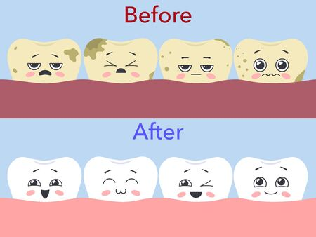 Before and after - the concept of dental care. Dirty miserable teeth and funny   teeth. Vector illustration