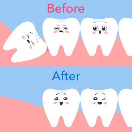 Removing an incorrectly positioned wisdom tooth. Before and after. Cartoon cute teeth. Vector illustration