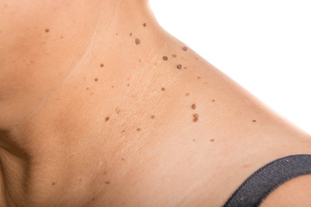 birthmark: skin of a woman with moles