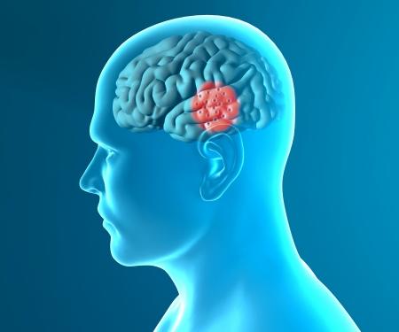 Brain degeneratív betegségek Parkinson Stock fotó