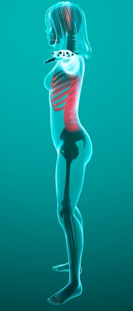 Human woman x-ray with pain in the spine and ribs Stock Photo - 24071962