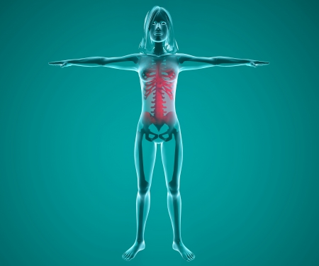 Human woman x-ray with pain in the spine and ribs Stock Photo - 24071964