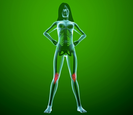 Human woman x-ray with pain in the knee joints Stock Photo - 24071990