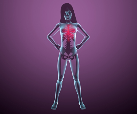 Human woman x-ray with pain in chest Stock Photo - 24071993