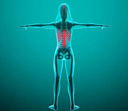 Human x-ray with pain in the spine and ribs Stock Photo - 24072002