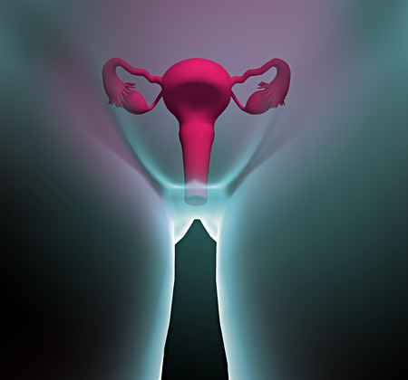 Human x-ray with pain in the uterus Stock Photo - 26038186