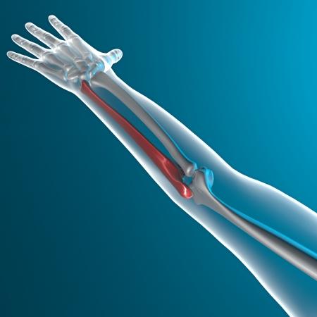 Arm bone x-ray human body photo