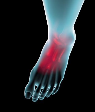 Foot seen on x-ray with pain in the ankle and the plant Stock Photo