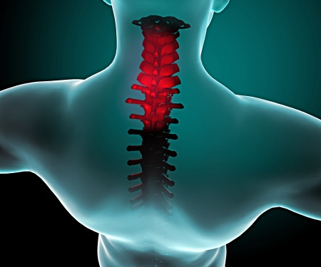 anatomy muscles: Pain in the neck and spine in a x-ray vision  Human body seen from behind with a x-ray view of the spine