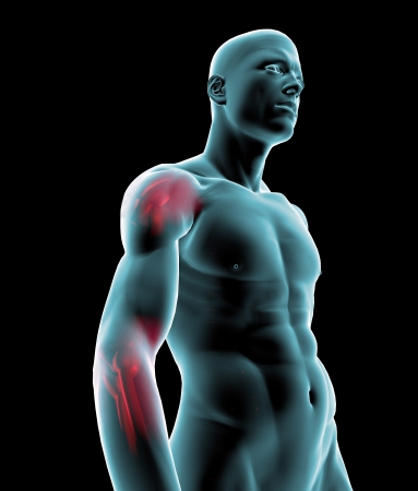 contracture: Man x-ray shoulder elbow pain