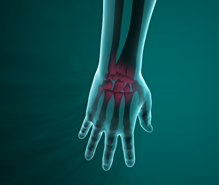 phalanges: X-ray of a hand and wrist pain  Hand and forearm seen on x-rays