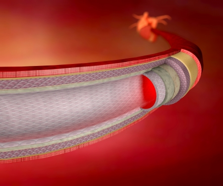 heart vessel: Section of a blood vessel, artery, red blood cells, heart Stock Photo