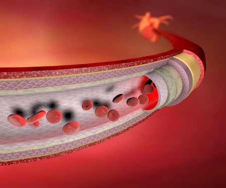 blood vessel: Section of a blood vessel, artery, red blood cells, heart Stock Photo