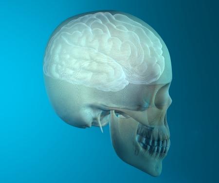 categories: Brain skull x-ray head anatomy