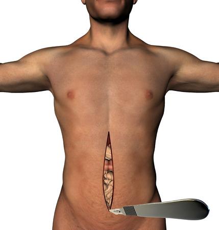 dissect: Traditional surgery scalpel abdomen cut human body Stock Photo