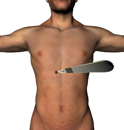 flesh surgery: LESS surgery abdomen incision scalpel a human body  Minimally invasive surgery, a single micro cutting with a scalpel