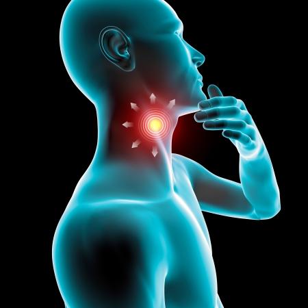 tonsillitis: Sore throat inflammation