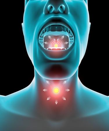 喉の痛み炎症 写真素材