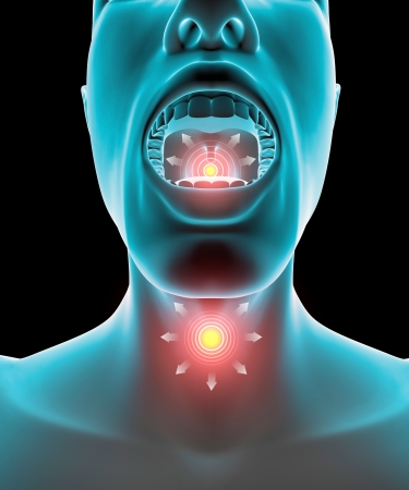 inflammation: Sore throat inflammation