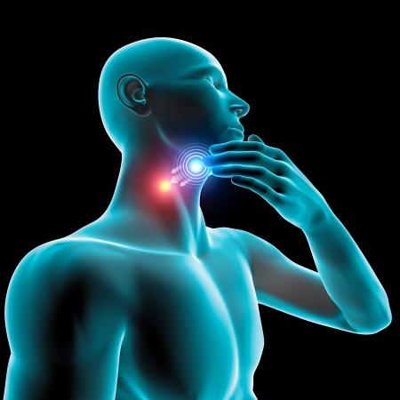 Ból zapalenie gardła