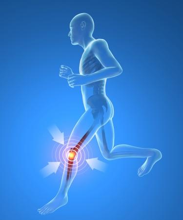 tarsus: L'uomo, scheletro, corsa, dolore al ginocchio infiammazione
