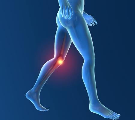 dolor de rodilla: El hombre, el esqueleto, pie, dolor en la rodilla inflamación Foto de archivo