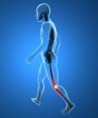partes del cuerpo humano: El hombre, el esqueleto, pie, dolor en la rodilla inflamación Foto de archivo