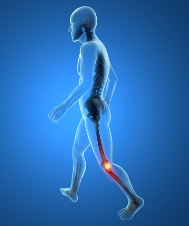 human body parts: Man, skeleton, walk, knee pain inflammation