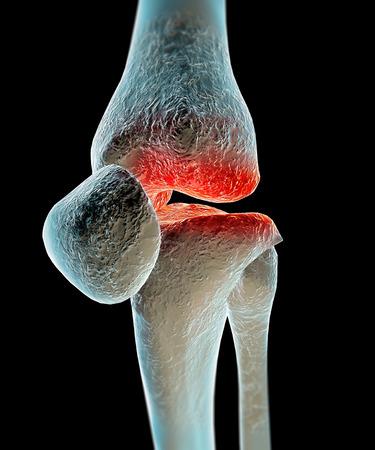 Human knee leg bone pain