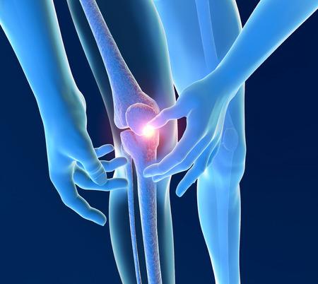 A gyulladás fájdalmat térd csontváz röntgen