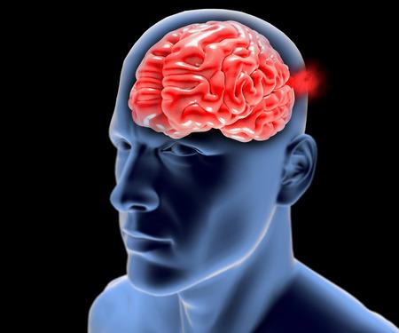 Cerebral aneurysm, brain head 스톡 콘텐츠