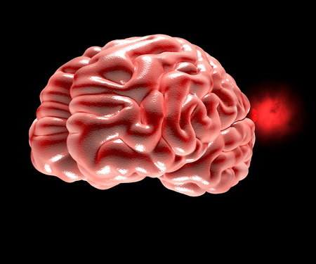 Cerebral aneurysm, brain head Stock Photo