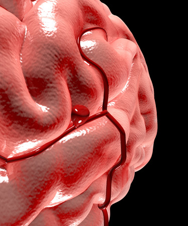 Cerebral aneurysm, brain head Stock Photo