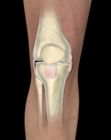 Knee ligaments, tendons, x-ray  photo
