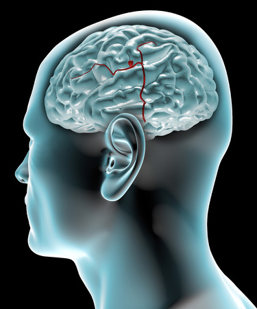 dysplasia: Cerebral aneurysm, brain head  Head in profile to the x-ray with brain aneurysm
