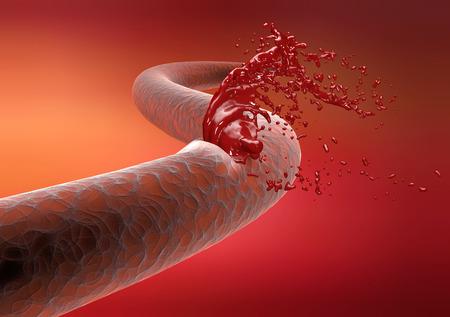 Gesägt Arterie Bruch Blutungen Blut Schneiden einer Vene Blutungsrisiko Standard-Bild