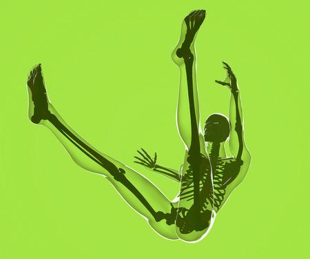Őszén egy emberi test látható a röntgenfelvételen személy, aki beleszeret, sérülés kockázatát Stock fotó