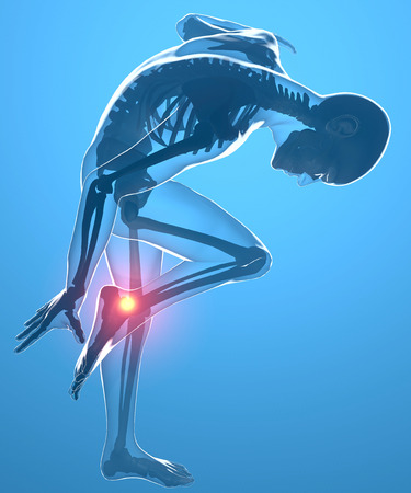tendons: Human body with ankle pain Stock Photo