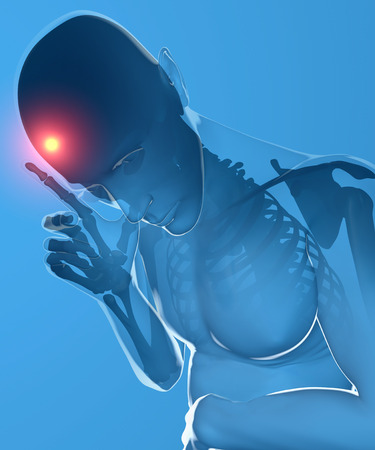 Headache, head, human body on x-ray photo